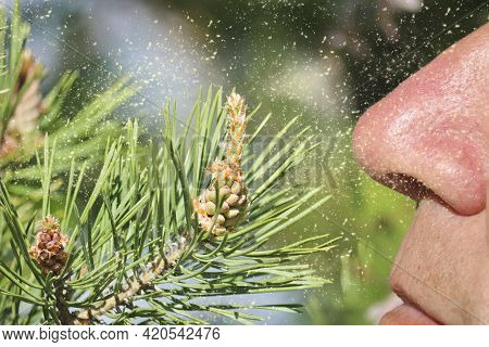Male Nose In Pollen From Male Pine Cones Is An Allergen. Male Pine Cones (pinus Sylvestris).