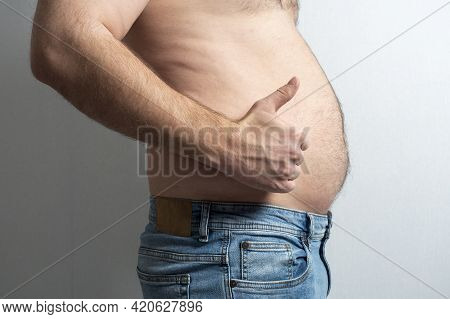 A Fat Man In Jeans With A Bare Stomach And A Finger Raised In The Air. The Concept Of Body Positivit