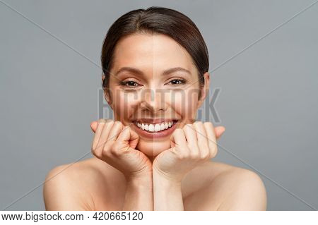 Skin Whitening. A Latin American Woman Comparing Half Of Her Face With Dark, Tanned Skin And Half Wi