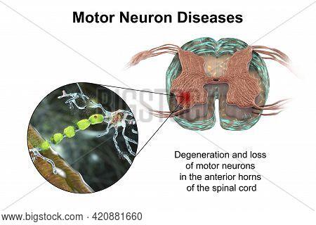Motor Neuron Diseases, 3d Illustration Showing Degeneration Of Motor Neurons In Anterior Horns Of Sp