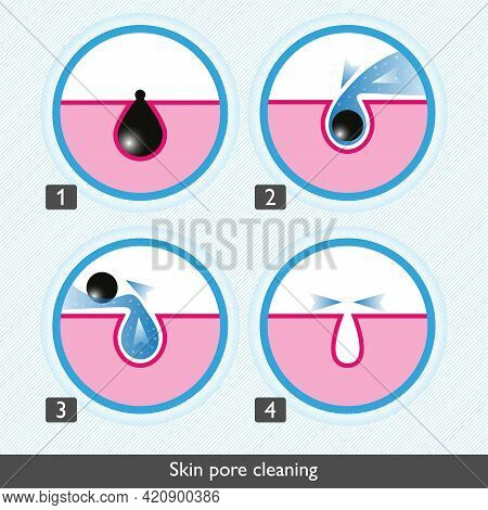 Skin Pore Cleansing Process Icons. Facial Treatments Colored Icons. Treatment Of Skin Diseases, Sebu
