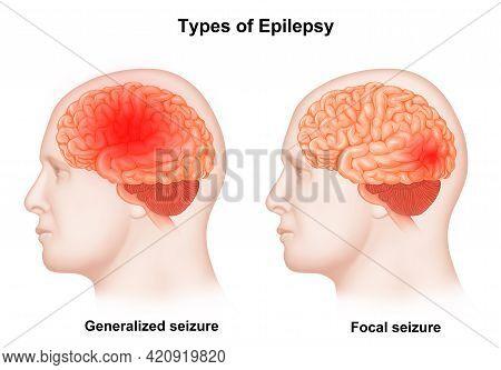 Medical Illustration Of Human Brain Types Of Epilepsy