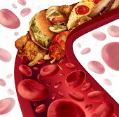 Cholesterol blocked artery medical concept with a human blood vessel that is clogged by unhealthy food as hamburgers and fried foods as a health risk metaphor for dieting and nutrition problems as eating fat. poster