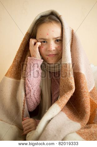 Itching Little Girl With Chickenpox