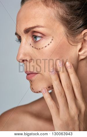 older woman with correction lines on her face for plastic surgery, vanity strive for perfection