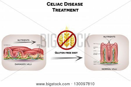 Celiac Disease Treatment Gluten Free Diet