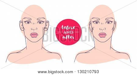 Portrait of a woman before and after with cosmetic defects. Plastic surgery and correction of deficiencies in appearance. Otoplasty. Protruding ears