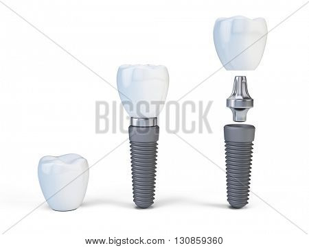 Tooth human implant isolated on white. 3d render