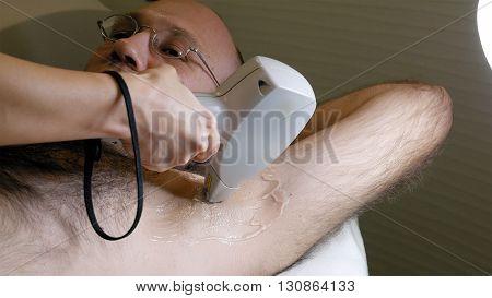 Man gets laser hair removal treatment underarm. Modern permanent epilation procedure.