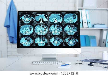 Tomography on screen of computer at workplace in office