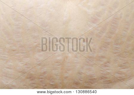 Closeup stretch marks on woman tummy skin