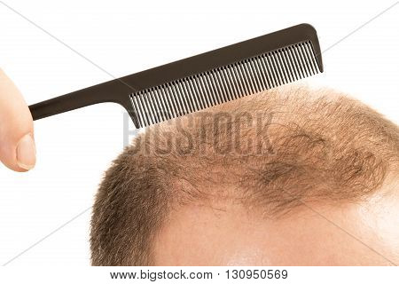Man alopecia baldness or hair loss - adult man hand holding comb on bald head isolated