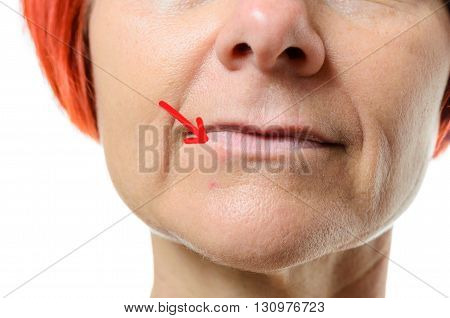 Woman With Blemish On Chin