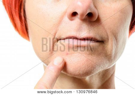 Woman Pointing To Blemish On Chin