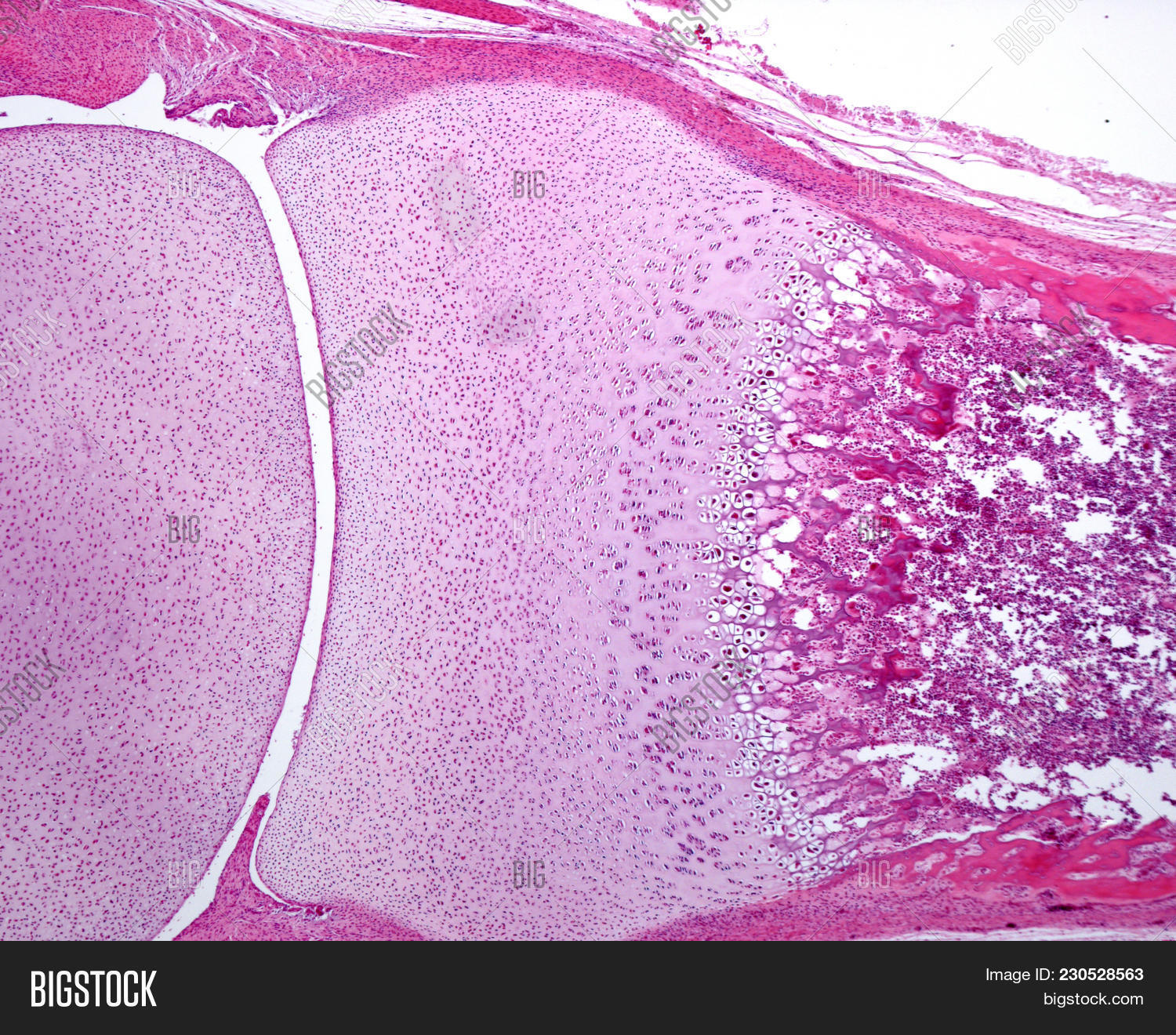 Hyaline Cartilage Under Microscope