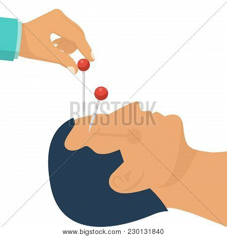 Acupuncture Treatment Closeup