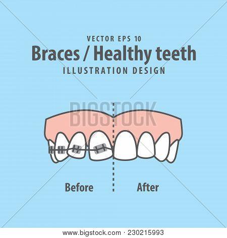 Braces-healthy Teeth Illustration Vector On Blue Background. Dental Concept.