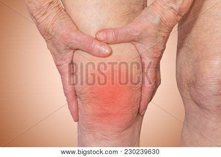 Senior Woman Holding The Knee With Pain On Pastel. Pain Concept. The Elderly Pensioner And Her Probl