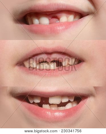 Set Of Children's Mouths With Missing Teeth. Children's Teeth, Health And Dentistry. Smile Baby With