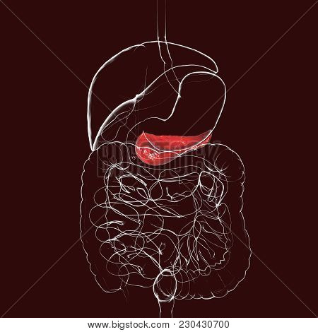 Human Pancreas Anatomy, 3d Illustration Showing Organs Of Digestive System With Highlighted Pancreat