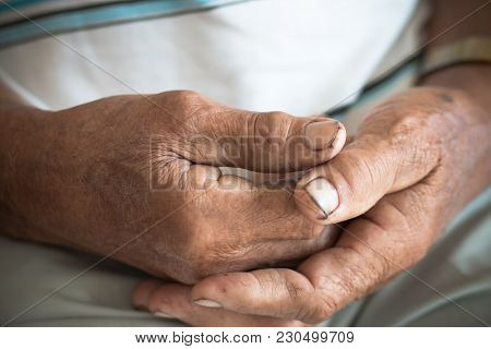 Hands Asian Poor Elderly Grandfather Man That  Have Dry Black And Dirty Nails, World Kindness Day Co