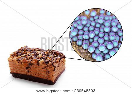 Staphylococcal Food Poisoning, Medical Concept, 3d Illustration Showing Cake As A Common Source Of F