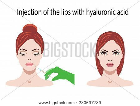 Vector Illustration Withface And Hyaluronic Acid For Lips Injections On The White Background