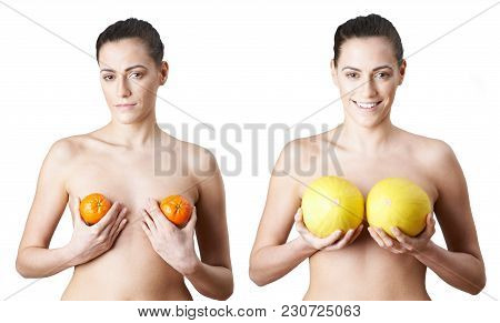 Woman Holding Satsumas And Melons To Illustrate Breast Enlargement Surgery