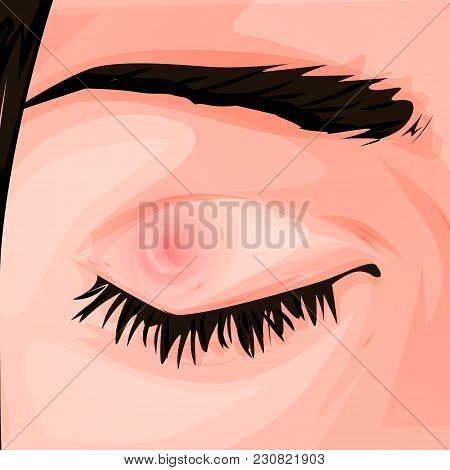 Pimple On The Eye. Conjunctivitis. Redness And Inflammation Of The Eye. Vessels In The Eye. For Info