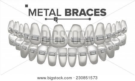 Metal Braces Vector. Human Jaw. Braces On Teeth. Smile With Braces. Realistic Isolated Illustration