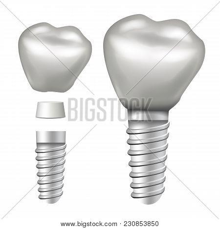 Dental Implant Vector. Molar Human Teeth. Dental Clinic Stomatology Flyer. Realistic Isolated Illust