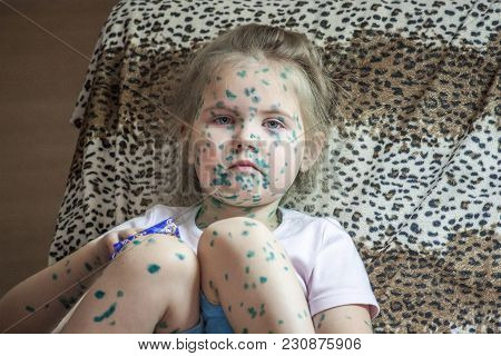 Portrait Of Cute Little Girl 3-4-5 Years Old With Sad Eyes, With  Chickenpox, Pimples Anointed With