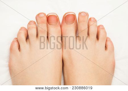 Female Toe Nails Without Pedicure. Lack Of Nutrients. Close-up View. No Face