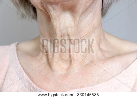 A Flabby Wrinkled Excess Skin On The Neck Of A Senior Woman Close Up.