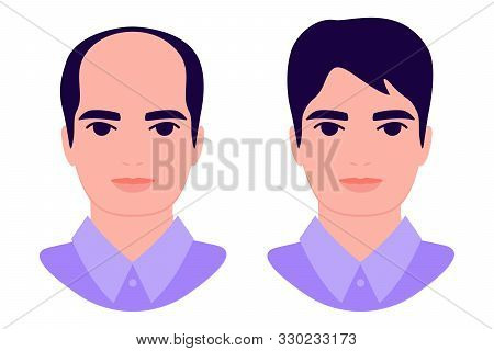 Man Baldness Problem. Male With Alopecia Before And After. Hair Loss. Hair Treatment, Transplantatio