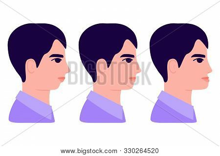 Malocclusion, Man In Profile. Wrong Bite: Lower Jaw Extended Forward And Retracted. Bite Correction