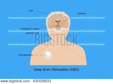 Neuromodulation With Deep Brain Stimulation Or Dbs At Subthalamic Nucleus For Treatment Of Parkinson