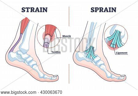 Sprain Vs Strain Anatomical Comparison As Medical Foot Injury Outline Diagram. Labeled Educational O