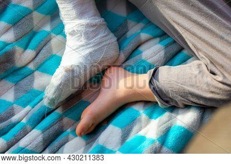 Child With Bandage On Leg Heel Fracture. Broken Right Foot, Bone, Calf, Ankle, Leg In Plaster, Splin