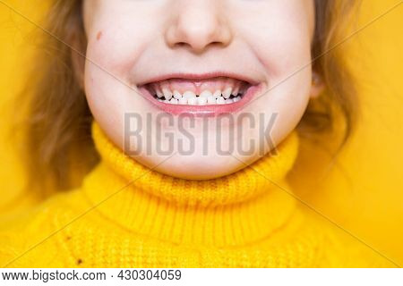 Girl Shows Her Teeth-pathological Bite, Malocclusion, Overbite. Pediatric Dentistry And Periodontics