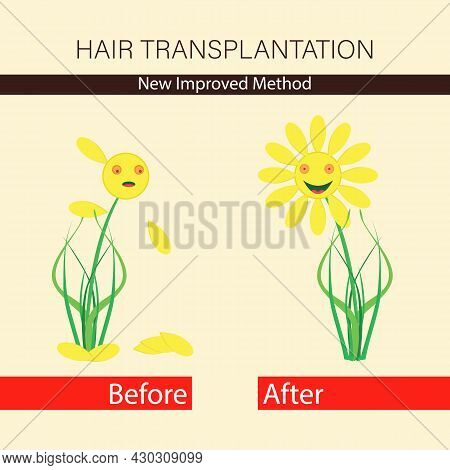 Hair Transplantation. Treatment Of Baldness And Alopecia. Template Advertising Banner. Hairless And