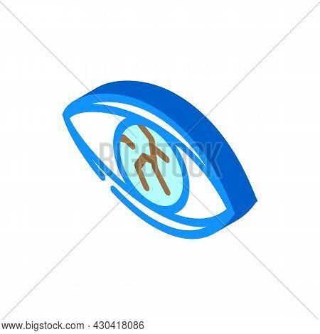 Lens Injury Ophthalmology Isometric Icon Vector. Lens Injury Ophthalmology Sign. Isolated Symbol Ill