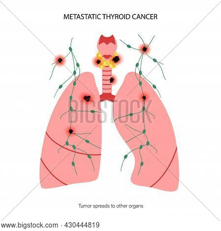 Thyroid Cancer Stages Anatomical Poster. Thyroid Gland, Trachea, Lungs And Lymph Nodes. Inflammation