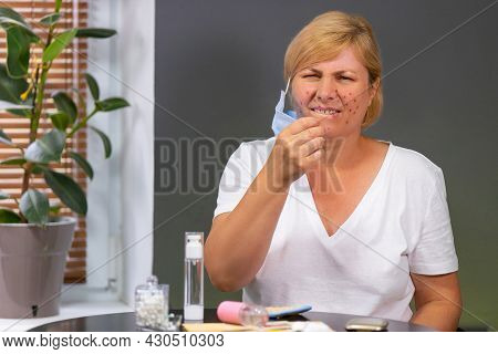Beautiful Caucasian Woman Having Acne Problem On The Face, Feeling Irritation And Pain After Getting