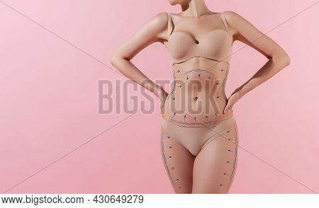 Marks Or Arrows On Womens Hips And Belly Before Plastic Surgery. Lifting, Beauty, Bodycare, Cellulit