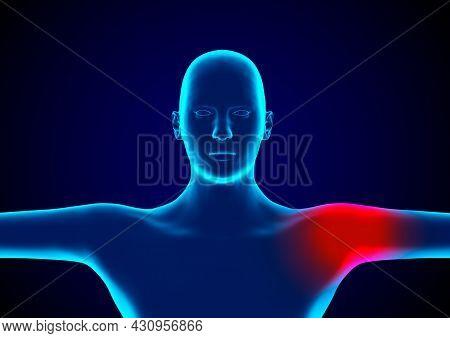Bursitis Is An Inflammation Of Bursae, Small Pockets That Lie Between Bones, Muscles And Tendons. 3d