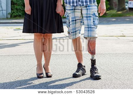 Male Amputee Wearing A Prosthetic Leg