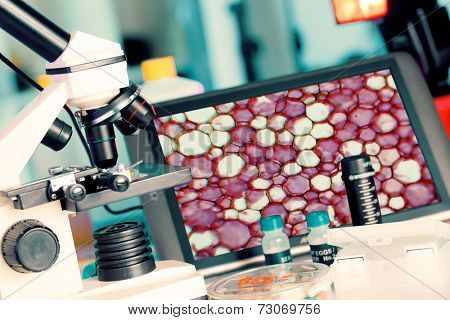 Test biopsy c on microscope for cancer cells