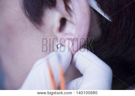 Auriculartherapy Ear Seed Treatment