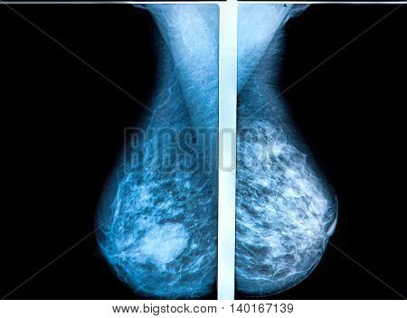 mammography breast scan X-ray image: health concepts